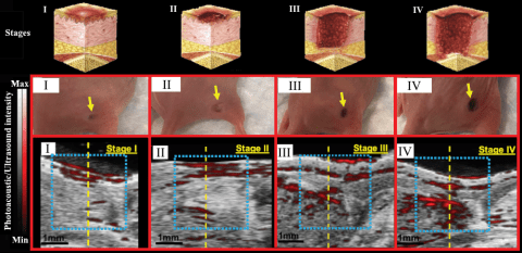 "Towards entry ""Jokerst Bioimaging Lab (UCSD) and PRL join forces to detect wounds"""